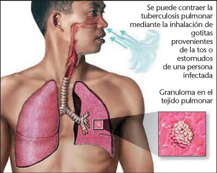 TUBERCULOSIS CONTAGIO