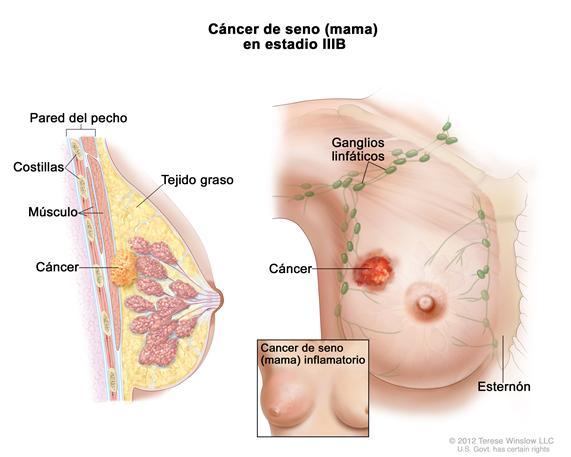 CANCER SENO GRAFICA