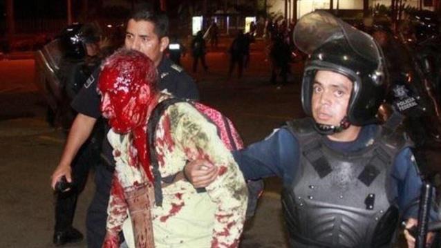 MAESTRO GOLPEADO POLICIA