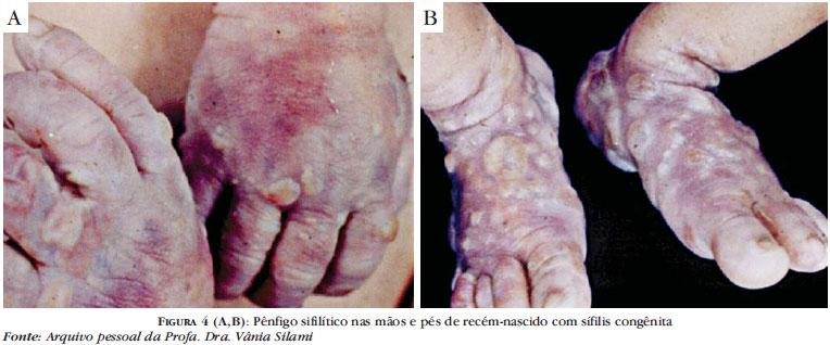 Manifestación de la sífilis congénita en un bebé (Foto: internet).
