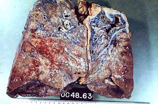 Pulmón con tuberculosis reinfectada. Presenta fibrosis, engrosamiento pleural y cavernas antiguas (Foto: Facultad de Medicina, UNAM).