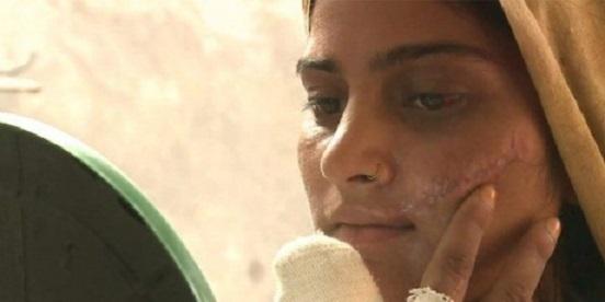 """Saba, después del intento de asesinato que cometió su padre por cuestión de """"honor"""" (Foto: Avaaz)."""