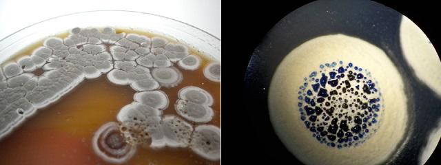 Imágenes de Streptomyces, el género más extenso de actinobacterias (Foto: cortesía del doctor Pablo Cruz).