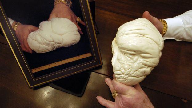 Las descomunales dimensiones de la perla de Puerto Princesa, Filipinas, no parecen reales: mide unos 70 centímetros de largo y más de 30 de ancho. Y su peso supera en cinco veces al de la Perla de Alá (o Perla de Lao Tzu), de 6,4 kilos, catalogada, hasta ahora, como la de mayor tamaño, peso y valor en todo el mundo (Foto: BBC Mundo).