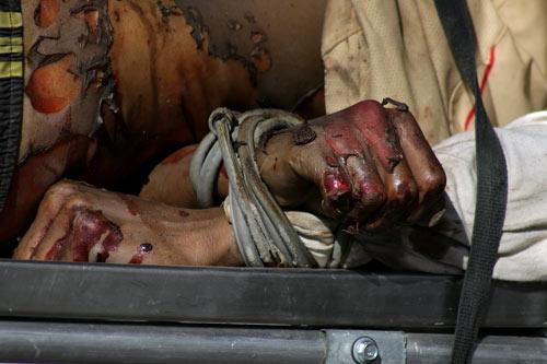 hombre-torturado-manos
