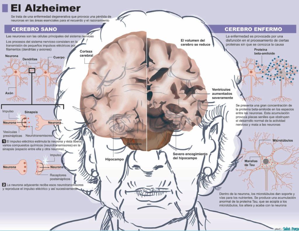 alzheimer-que-es-infoimagen